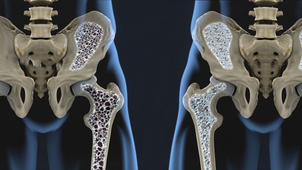 A képhez tartozó alt jellemző üres; osteoporosis-2-1024x576.jpg a fájlnév